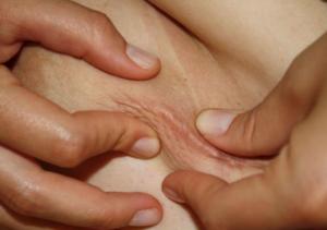 Littekentherapie Fysiotherapie Venray Fascia